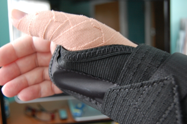 My hand all strapped up -the tape work on my thumb was painstakingly done by one of the nurses.